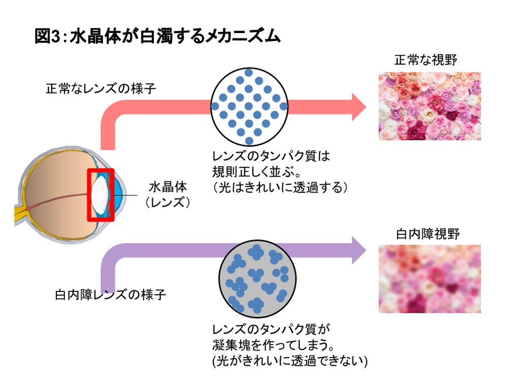水晶体が白濁するメカニズムの図