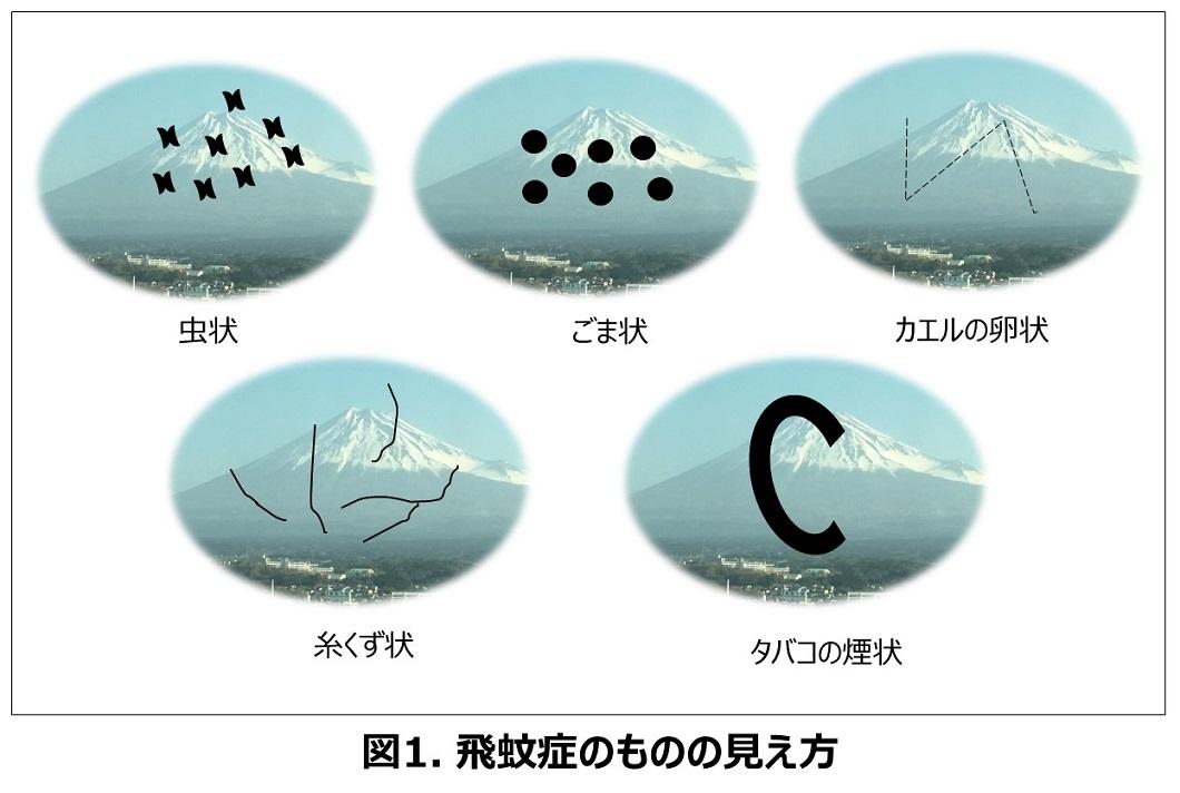飛蚊症の見え方の違いの写真