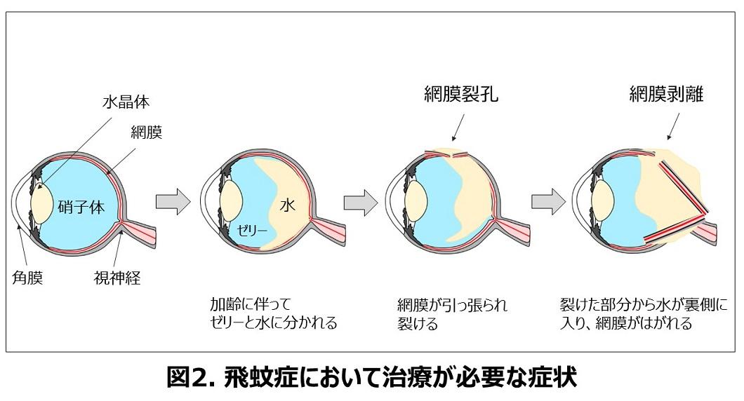 飛蚊症で治療が必要な硝子体の状態の図