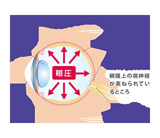 緑内障の症状でダメージを受ける視神経乳頭を示したイラスト