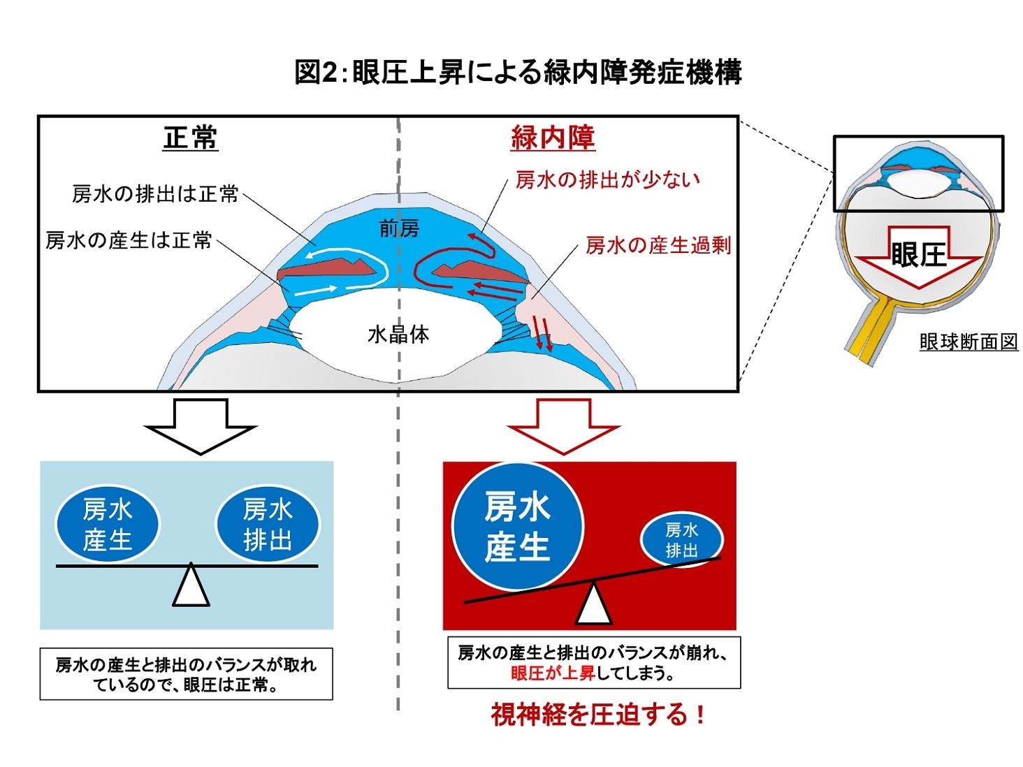 眼圧上昇の説明図