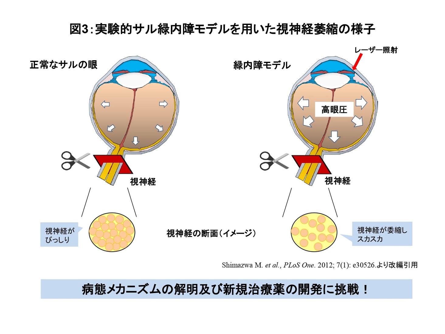 視神経萎縮の様子の説明図