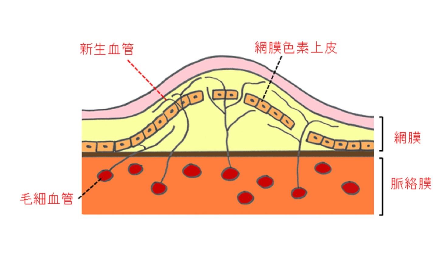 黄斑部の申請血管と浮腫