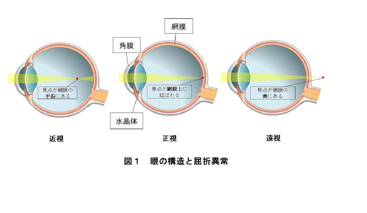 目の構造と屈折異常