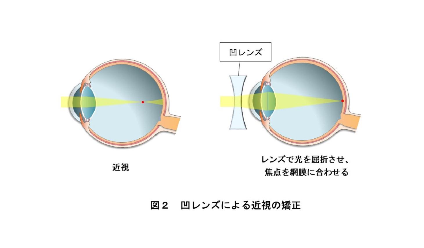 凹レンズによる近視の矯正