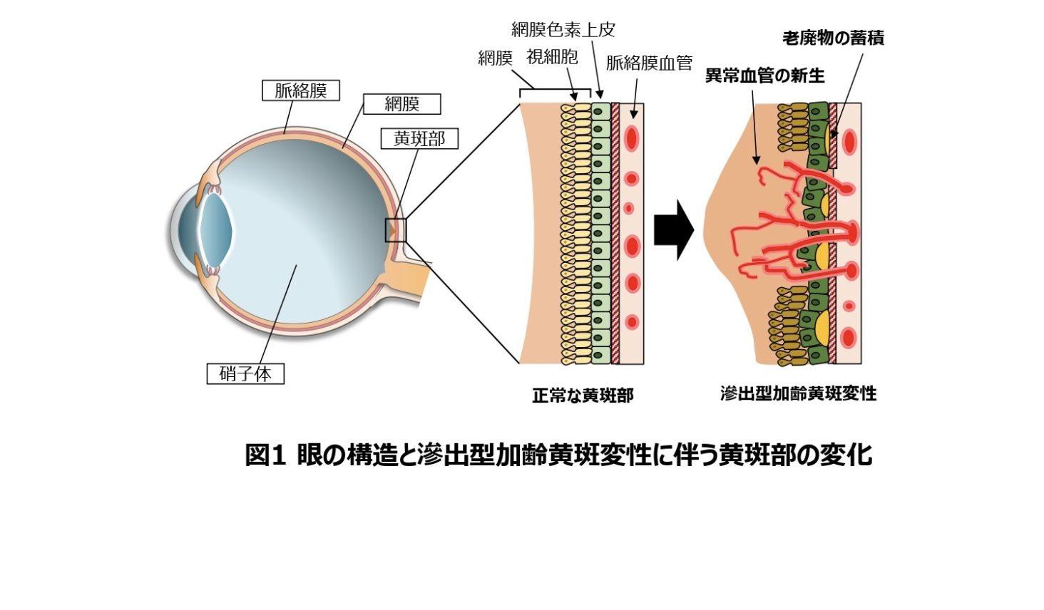 目の構造と滲出型加齢黄斑