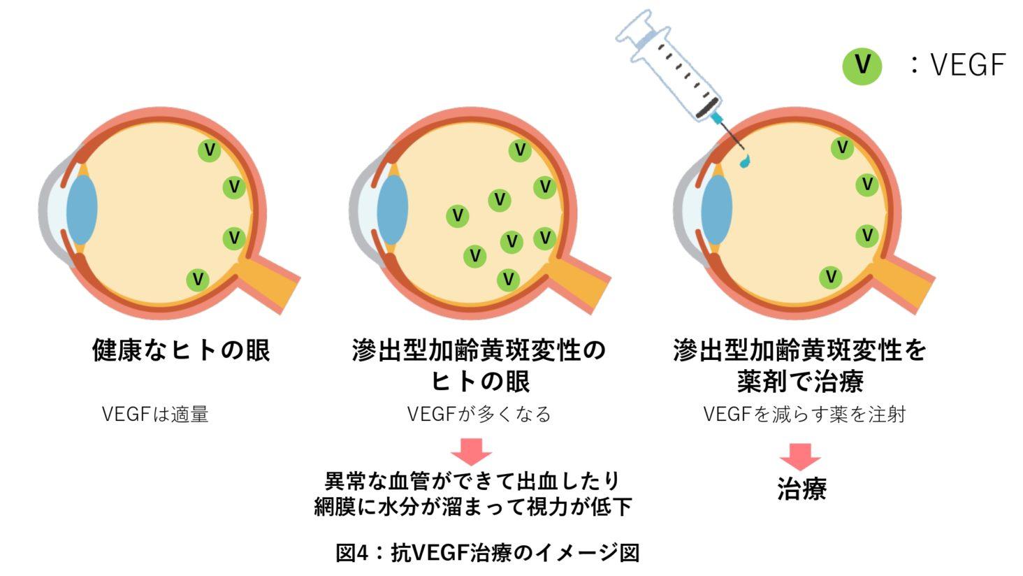 抗VEGF治療のイメージ