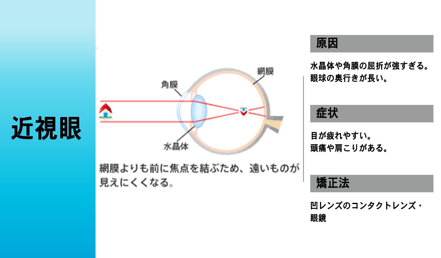 近視眼の仕組み