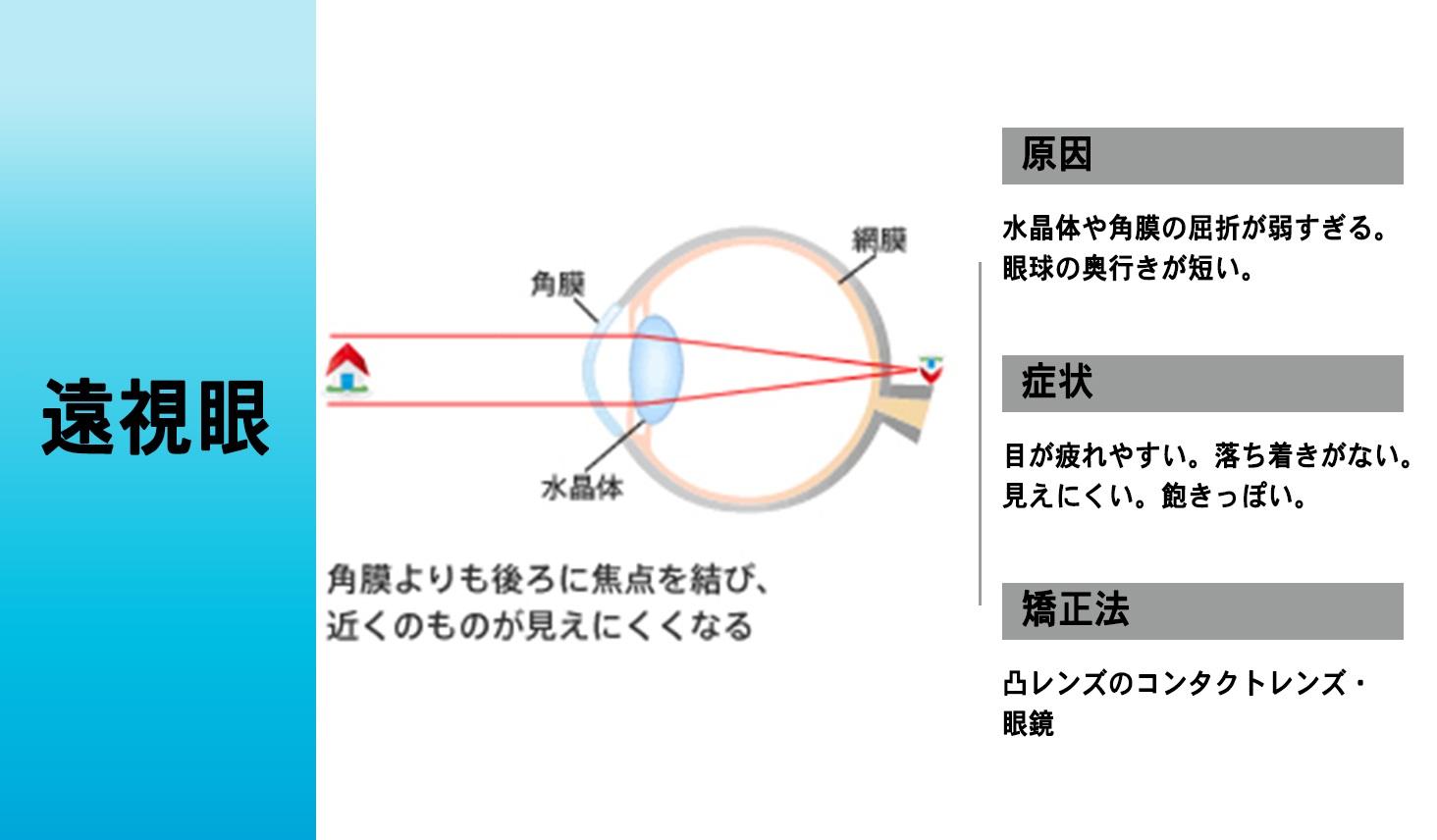 遠視眼の仕組み