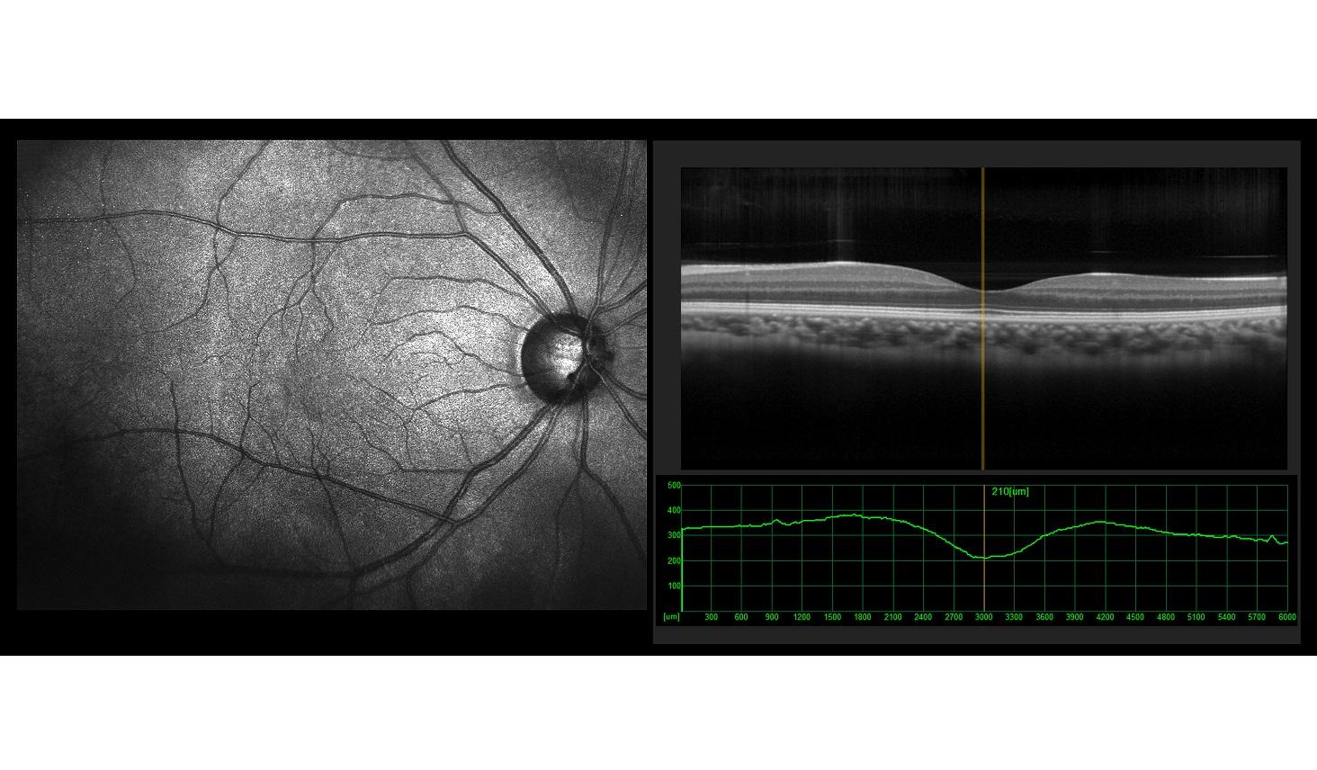OCTによる網膜の撮影(イメージ)