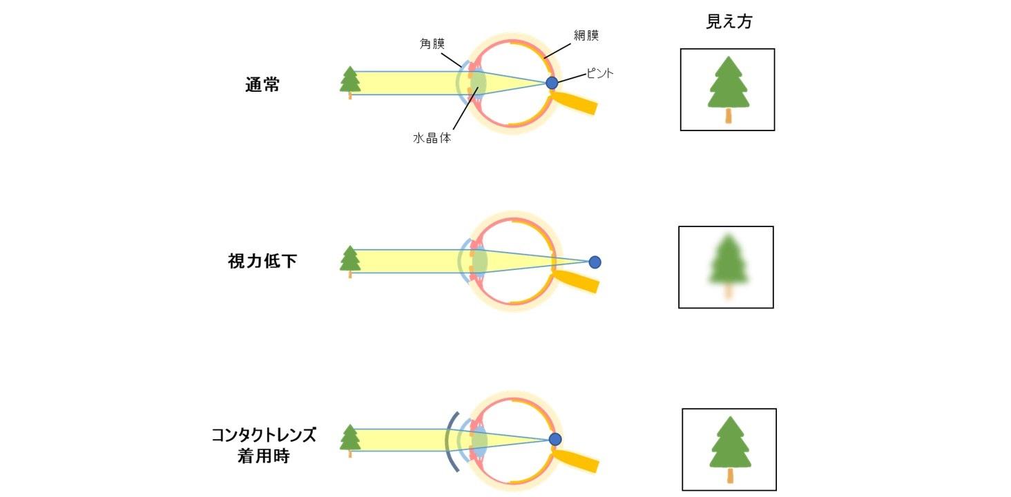コンタクトレンズの仕組みを表した図