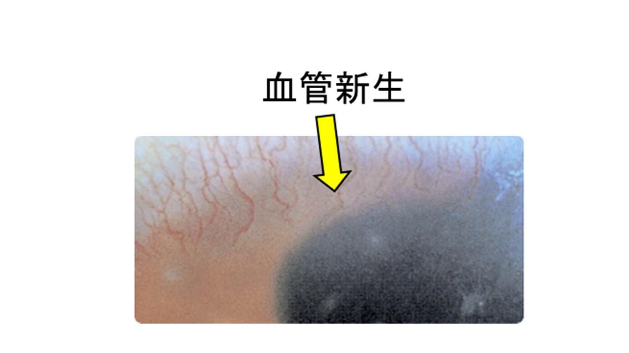 新しい血管が生み出されている